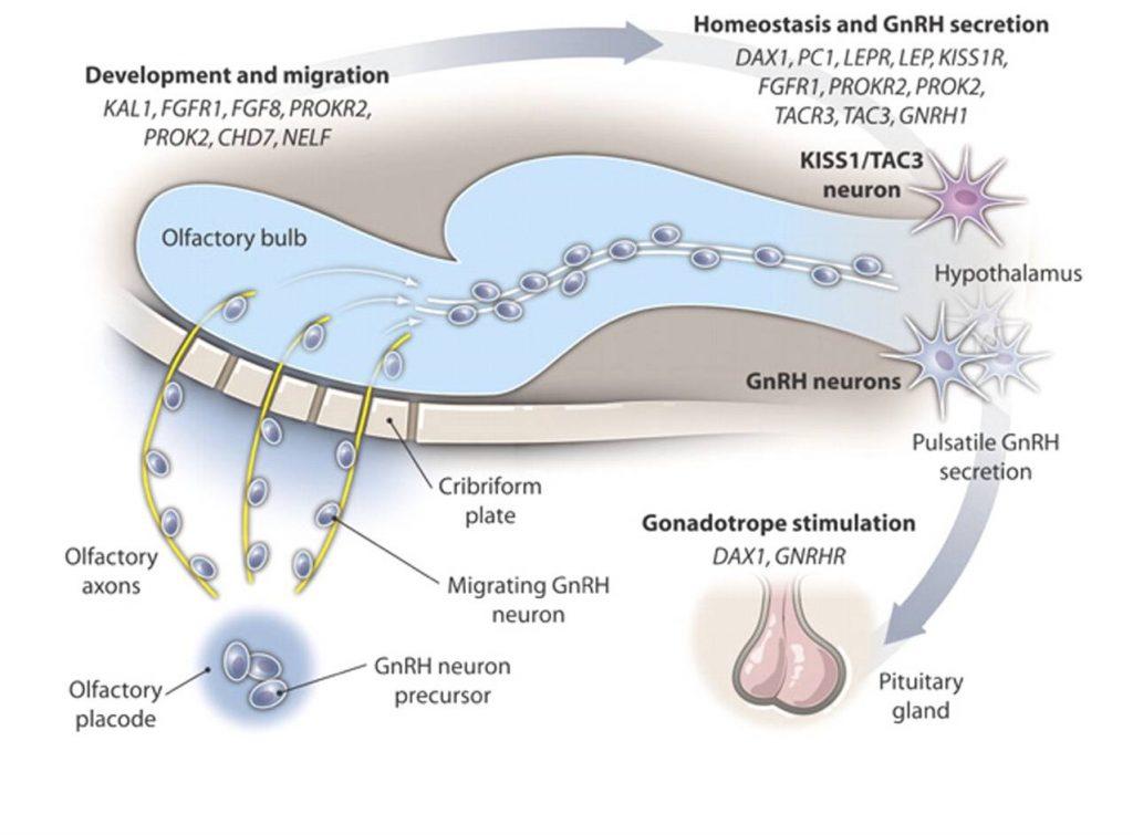 Kallman syndrome